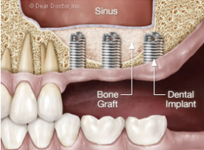 Kay Dental Tucson Implants